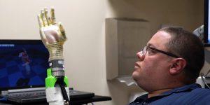 Calibración del prostético en mano derecha