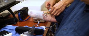 Ajuste de la mano prostética